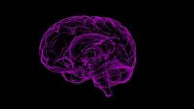 Cervell Alzheimer